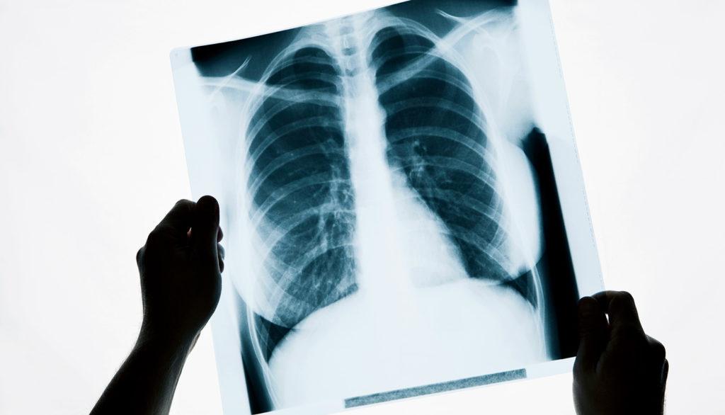 Рентгеновский снимок в руках