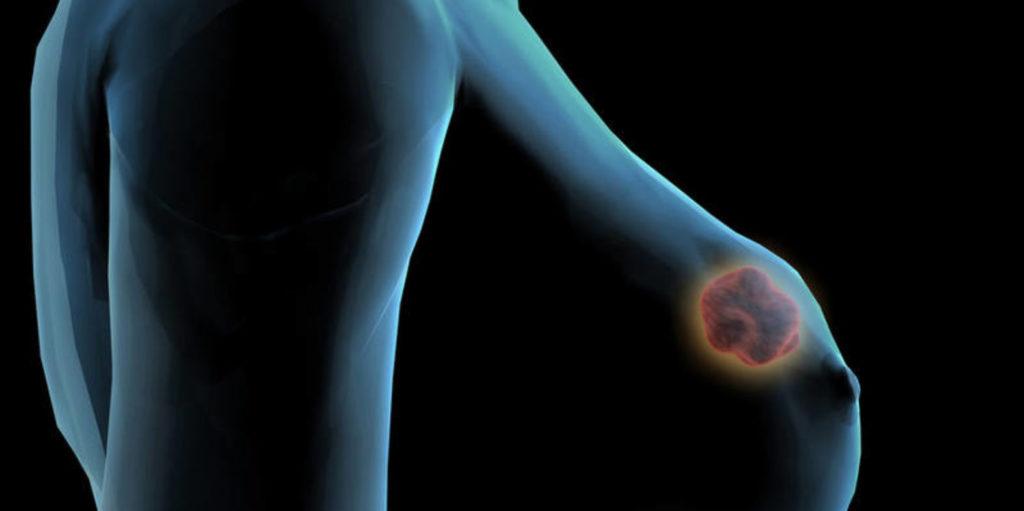 Злокачественная опухоль в груди схема