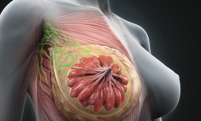Лактостаз при грудном вскармливании: что делать кормящей маме