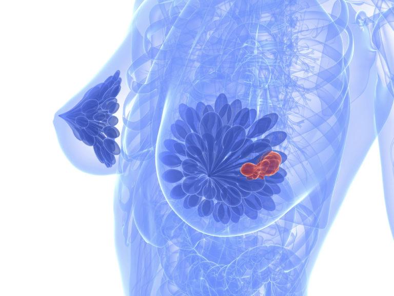 Как убрать уплотнение в груди при грудном вскармливании