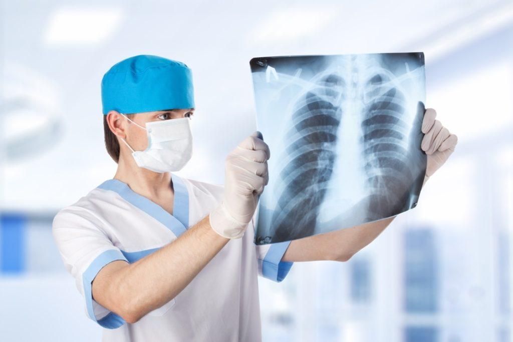Доктор рассматривает рентгеновский снимок грудной клетки в больнице