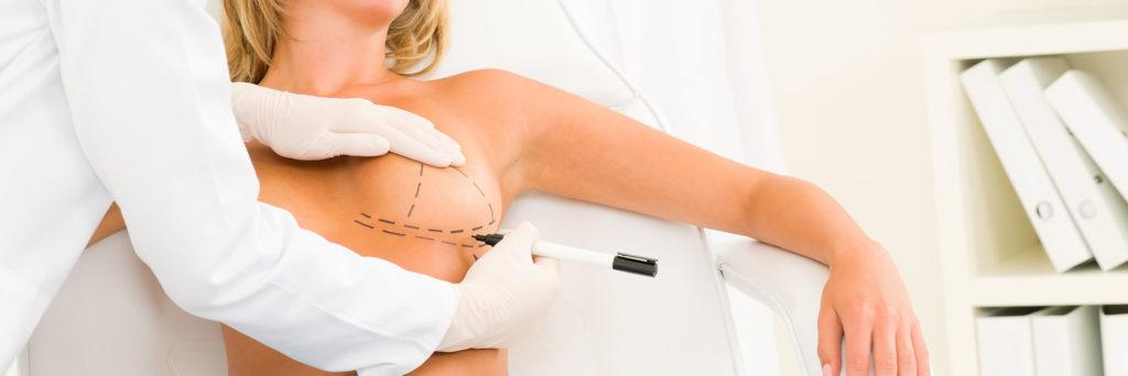 Врач рделает отметки на груди пациентки для маммопластики