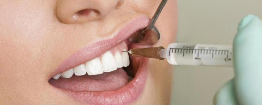 анестезия в стоматологии, девушке делают укол в десну