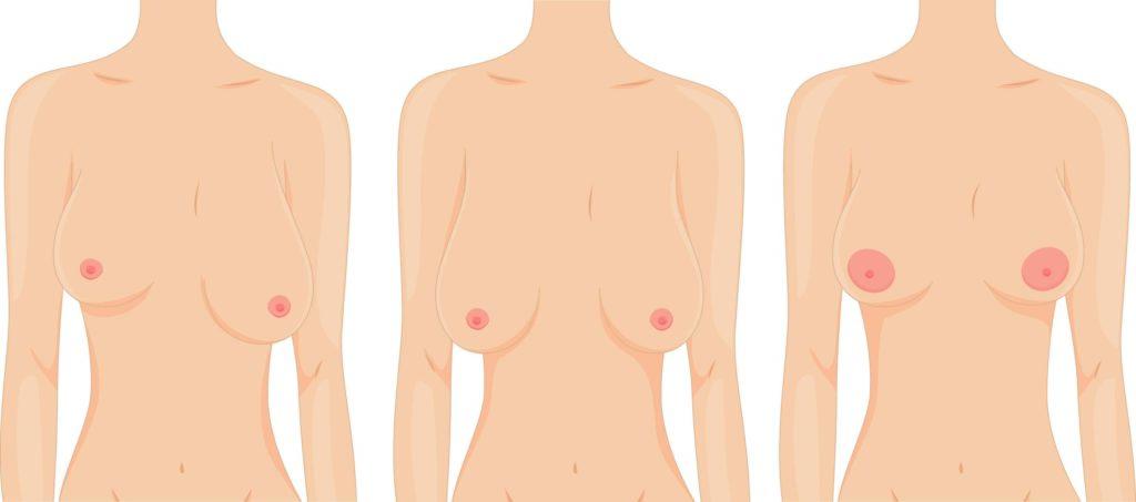 Форма груди после грудного вскармливания