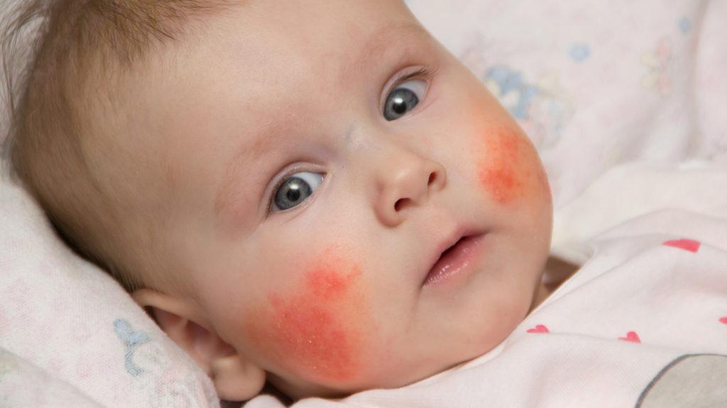Малыш с аллергией на щеках